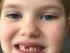 z-brina-zobek